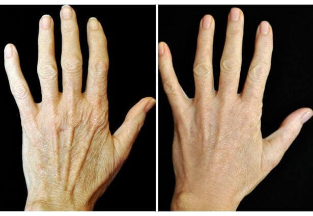 Verouderde huid op de handen